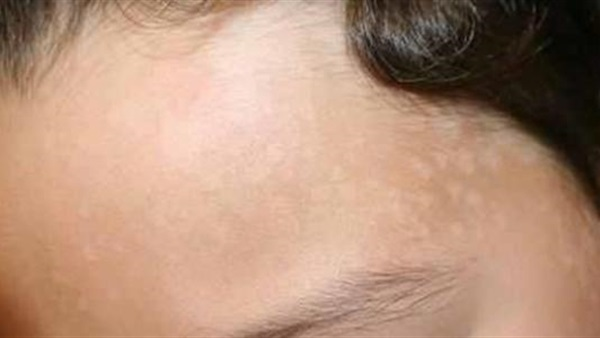 البوابة نيوز أسباب ظهور البقع البيضاء في الوجه وطرق العلاج